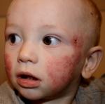 atopichen dermatit