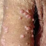 choveski papilomen virus