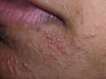 peroralen dermatit